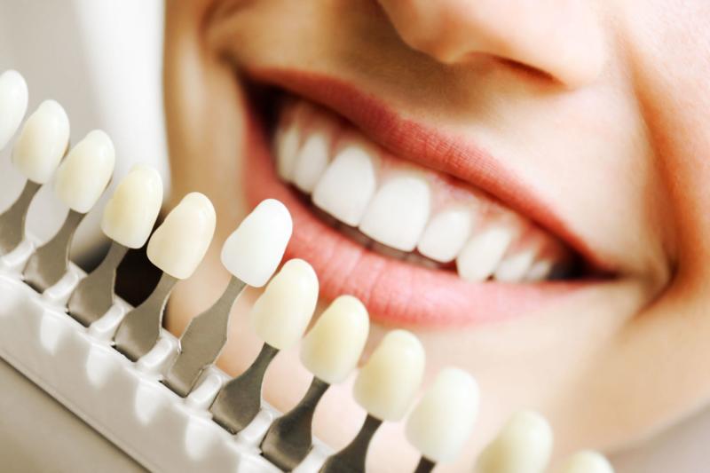 Zähne bleichen beim Zahnarzt Mundpropaganda Berlin