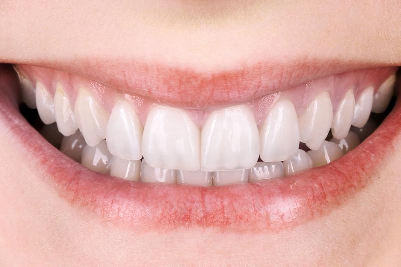 Implantate vom Zahnarzt in Berlin.